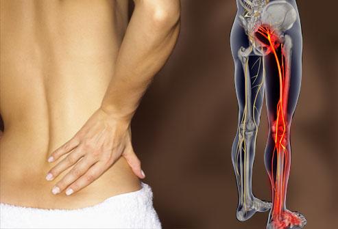 Sciatica: sintomi e prevenzione